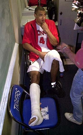 Cincinnati's Kenyon Martin answers questions in the locker room after Cincinnati's 68-58 loss to St. Louis in the Conference USA tournament in Memphis, Tenn. on Thursday, March 9, 2000. Martin broke his leg early in the game. (AP Photo/Mark Humphrey)